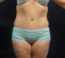 Manhattan abdominoplasty after 17